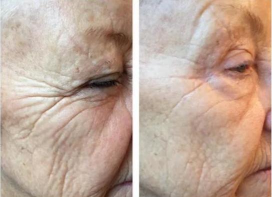 Black Carbon Laser Treatment | International Skin Care
